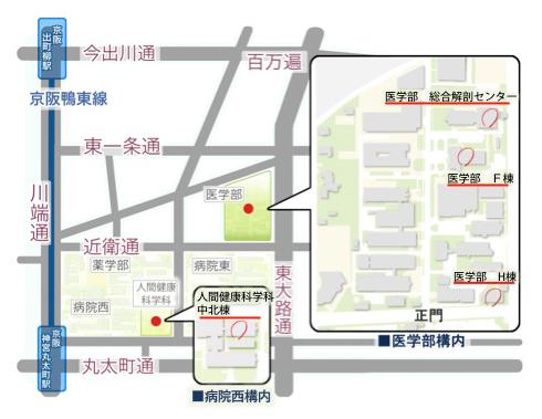 map160425_2